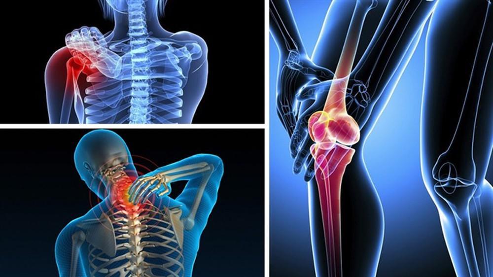 Triệu chứng bệnh cơ xương khớp
